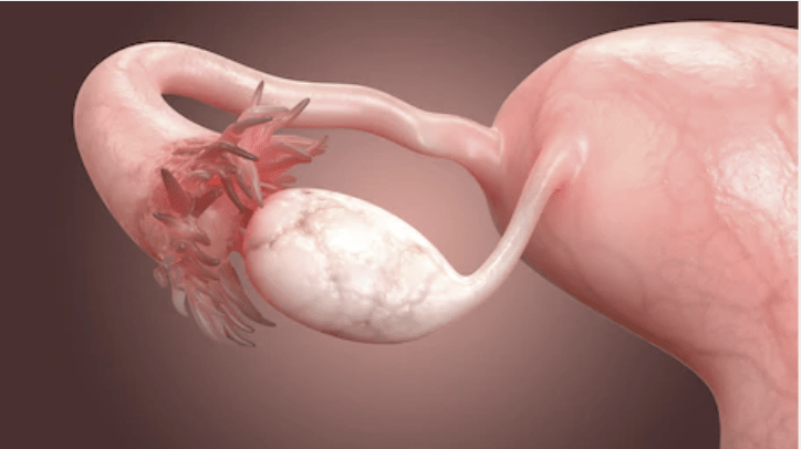 What to Know about Blocked Fallopian Tubes